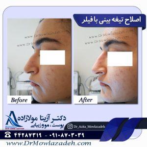 اصلاح تیغه بینی