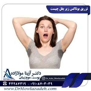 تزریق-بوتاکس-زیر-بغل-چیست؟
