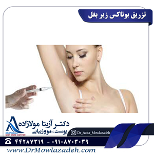 تزریق-بوتاکس-زیر-بغل