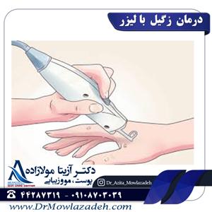درمان-زگیل-ها-با-لیزر