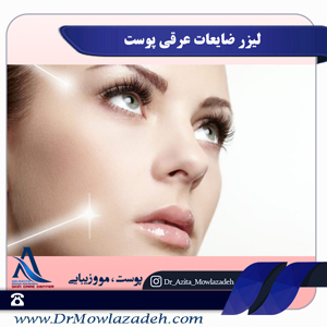 لیزر ضایعات عروقی پوست