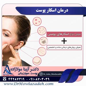درمان اسکار پوست