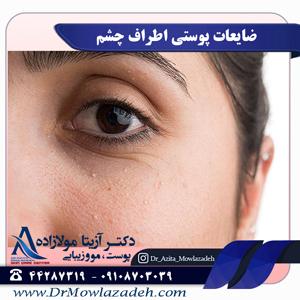 ضایعات پوستی اطراف چشم