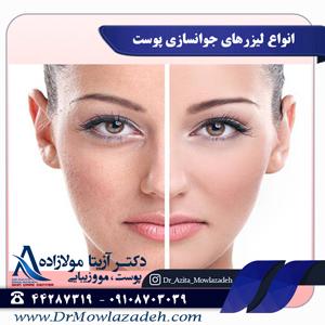 انواع لیزرهای جوانسازی پوست
