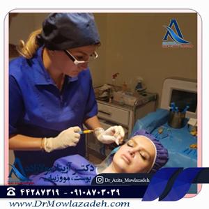 بهترین دکتر پوست در غرب تهران
